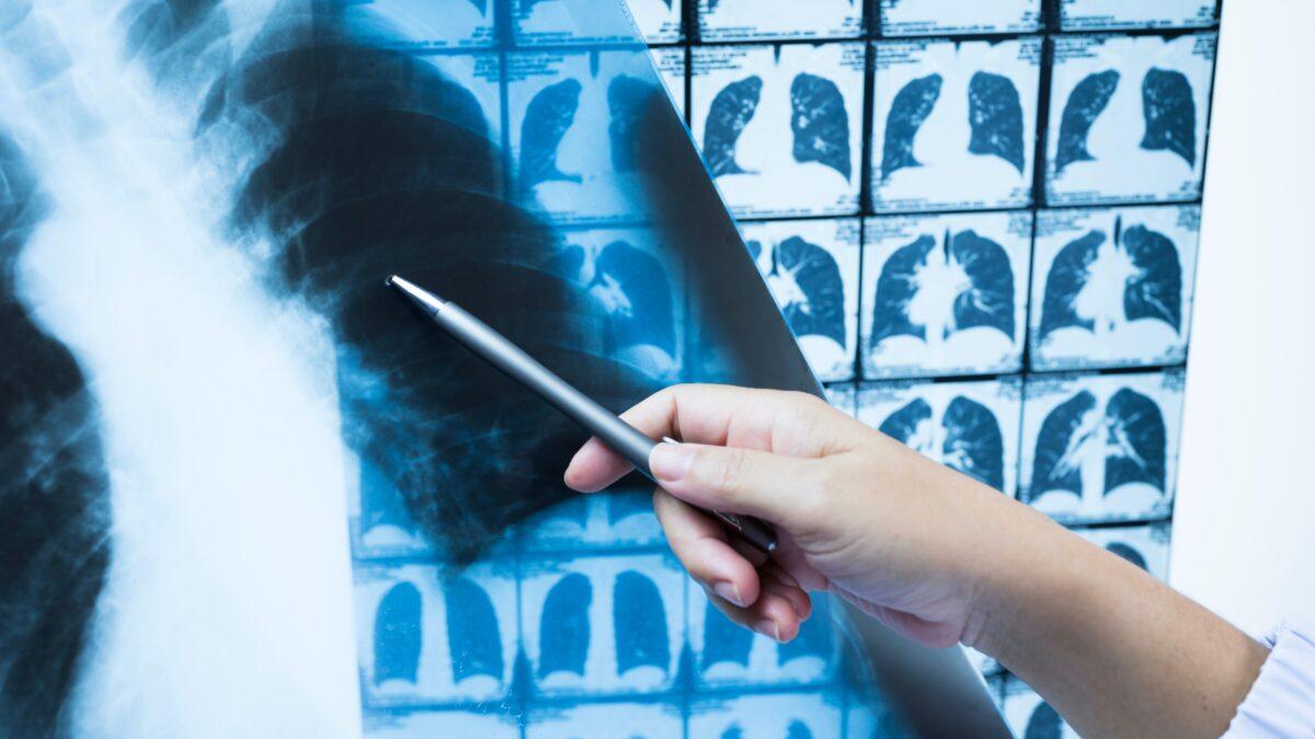 Rayos X e inteligencia artificial para evitar falsos negativos en el diagnóstico de la covid-19